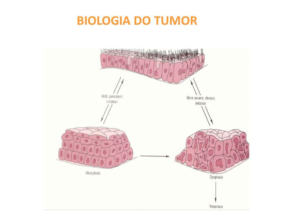 TUMORES MALIGNOS: câncer NOMENCLATURA Célula de origem + SARCOMA OU CARCINOMA:  Origem mesenquimal: sarcoma Ex: fibrossarcoma, leiomiossarcoma  Origem epitelial (derivado de qq folheto germinativo): carcinoma Ex.