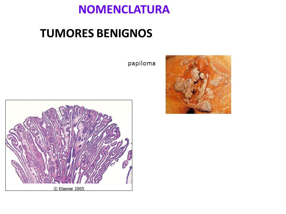 NOMENCLATURA TUMORES BENIGNOS papiloma