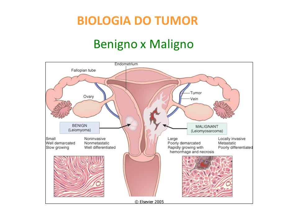 BIOLOGIA DO TUMOR Benigno x Maligno