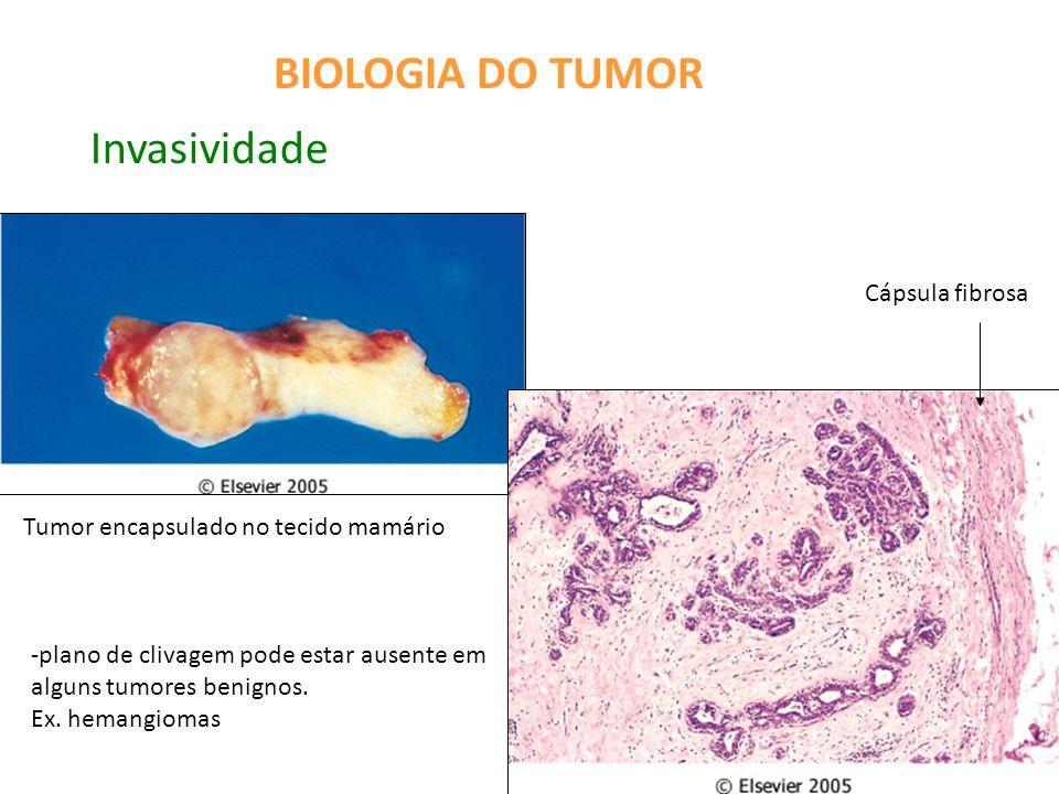 BIOLOGIA DO TUMOR Invasividade Cápsula fibrosa Tumor encapsulado no tecido mamário -plano de clivagem pode estar ausente em alguns tumores benignos.