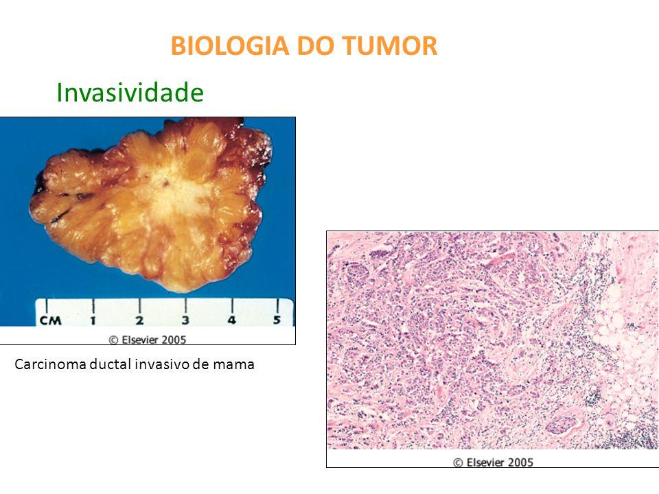 BIOLOGIA DO TUMOR Metástase Implantes tumorais em locais distantes do tumor primário Vias de disseminação: -implante direto em cavidades ou superfícies corporais -disseminação linfática -disseminação hematogênica: frequente comprometimento de fígado (veia porta), pulmão (veia cava) e vértebras (plexo paravertebral)