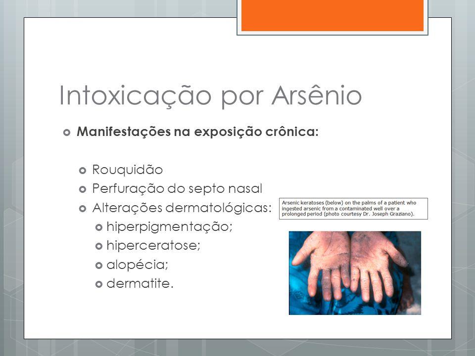 Intoxicação por Arsênio  Manifestações na exposição crônica:  Rouquidão  Perfuração do septo nasal  Alterações dermatológicas:  hiperpigmentação;
