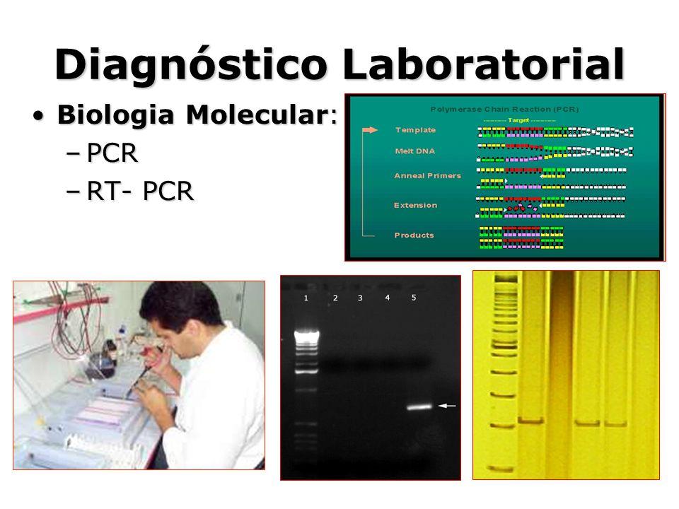 Diagnóstico Laboratorial •Biologia Molecular: –PCR –RT- PCR