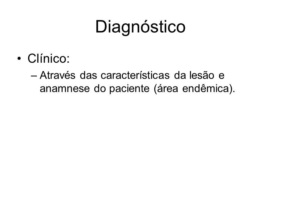 Diagnóstico •Clínico: –Através das características da lesão e anamnese do paciente (área endêmica).