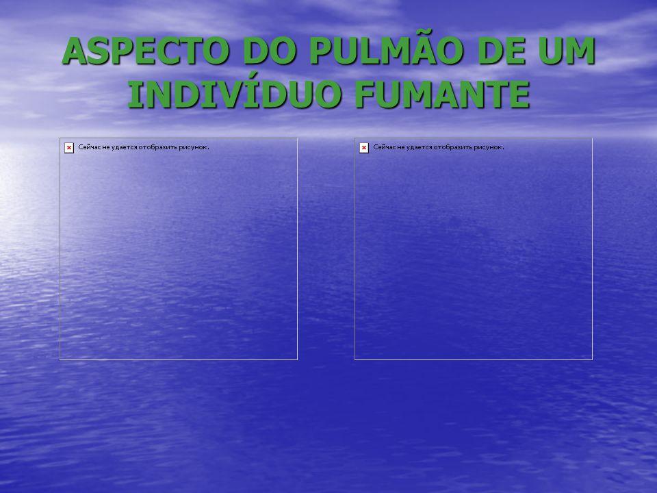ASPECTO DO PULMÃO DE UM INDIVÍDUO FUMANTE