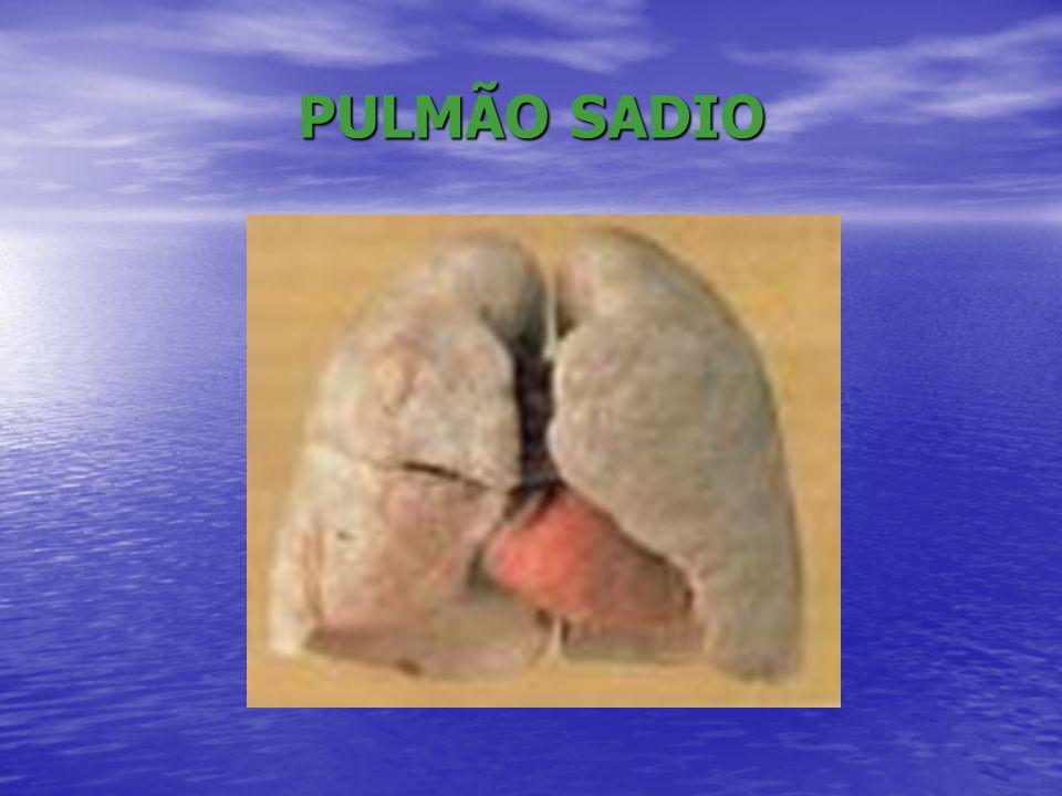 DOENÇAS CAUSADAS PELO USO DO TABACO • Cardiovasculares: hipertensão, infarto, angina, derrame, aneurisma arterial, trombose vascular, gangrena • Câncer: pulmão, boca, laringe, esôfago, estômago, rins, bexiga, próstata • Respiratórias: DPOC, bronquite crônica, enfisema pulmonar, fibrose pulmonar, infecções respiratórias, tuberculose, gripe, dispnéia • Gastrointestinal: úlcera do aparelho digestivo • Sexual: impotência sexual • Gravidez: má formação, baixo peso, aborto espontâneo, nascimentos prematuros, episódios de sangramento.