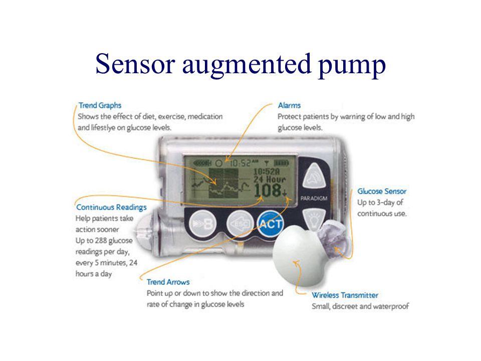 Sensor augmented pump