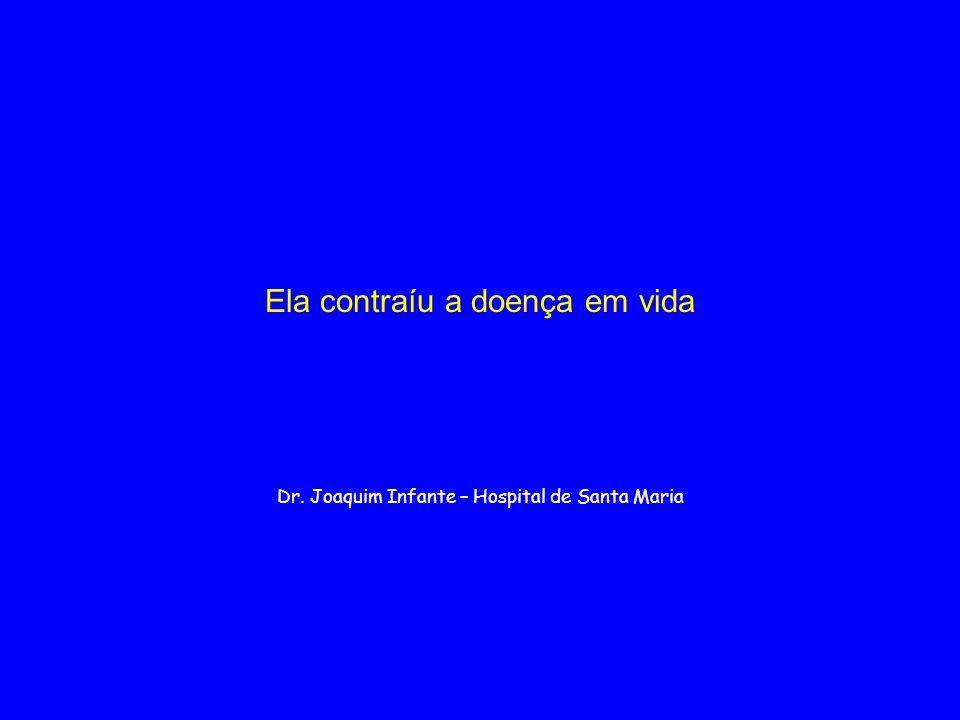 Ela contraíu a doença em vida Dr. Joaquim Infante – Hospital de Santa Maria