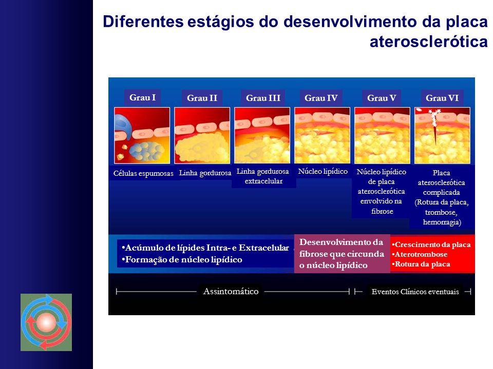 Diferentes estágios do desenvolvimento da placa aterosclerótica Grau I Grau IIGrau IVGrau IIIGrau VGrau VI Linha gordurosa extracelular Núcleo lipídic