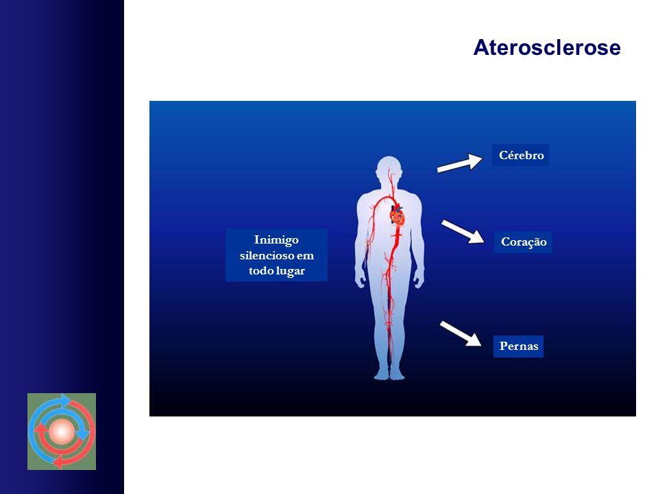Aterosclerose Cérebro Coração Pernas Inimigo silencioso em todo lugar