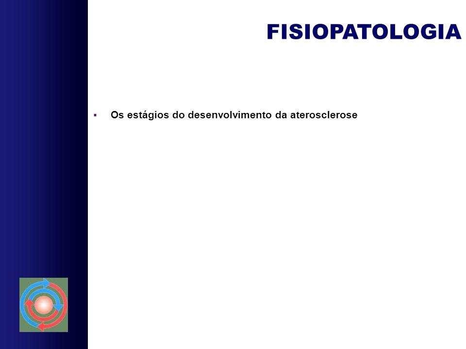  Os estágios do desenvolvimento da aterosclerose FISIOPATOLOGIA