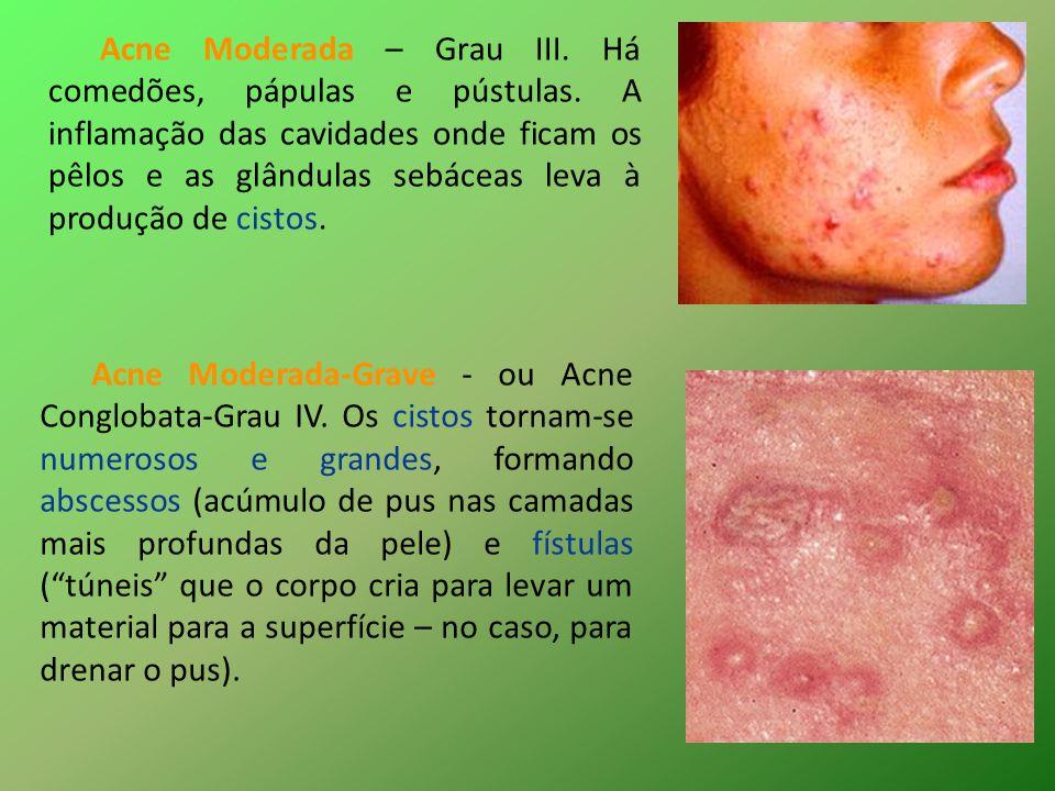 Acne Grave – ou Acne Fulminans-Grau V.Forma extremamente rara.