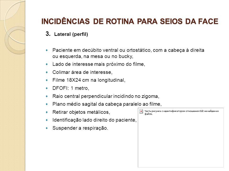 INCIDÊNCIAS DE ROTINA PARA SEIOS DA FACE 3. Lateral (perfil) Paciente em decúbito ventral ou ortostático, com a cabeça à direita ou esquerda, na mesa