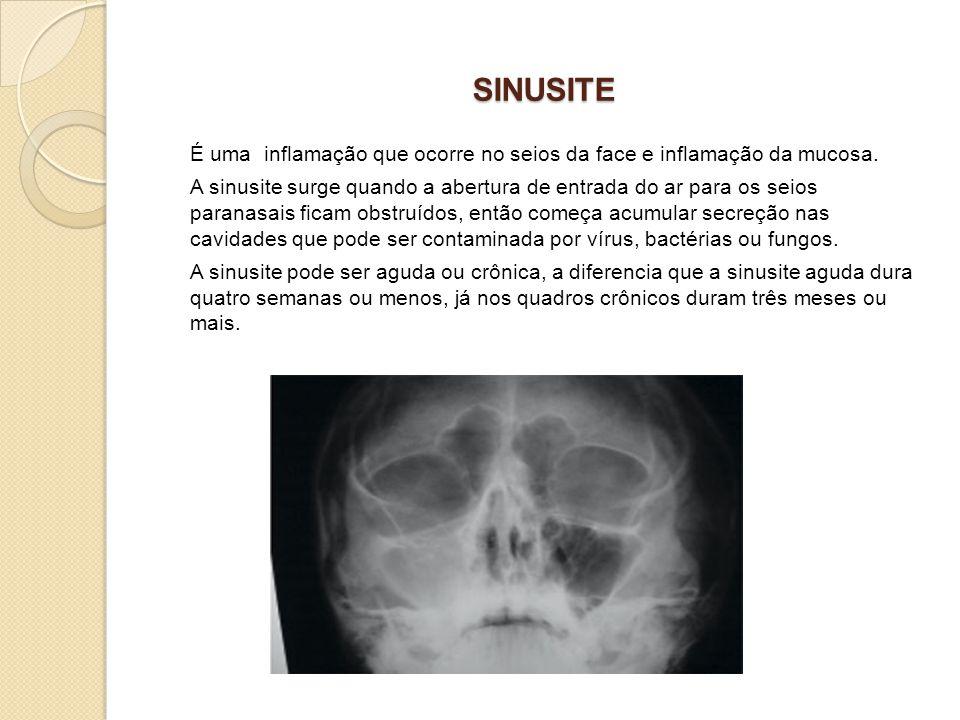 É uma inflamação que ocorre no seios da face e inflamação da mucosa. A sinusite surge quando a abertura de entrada do ar para os seios paranasais fica
