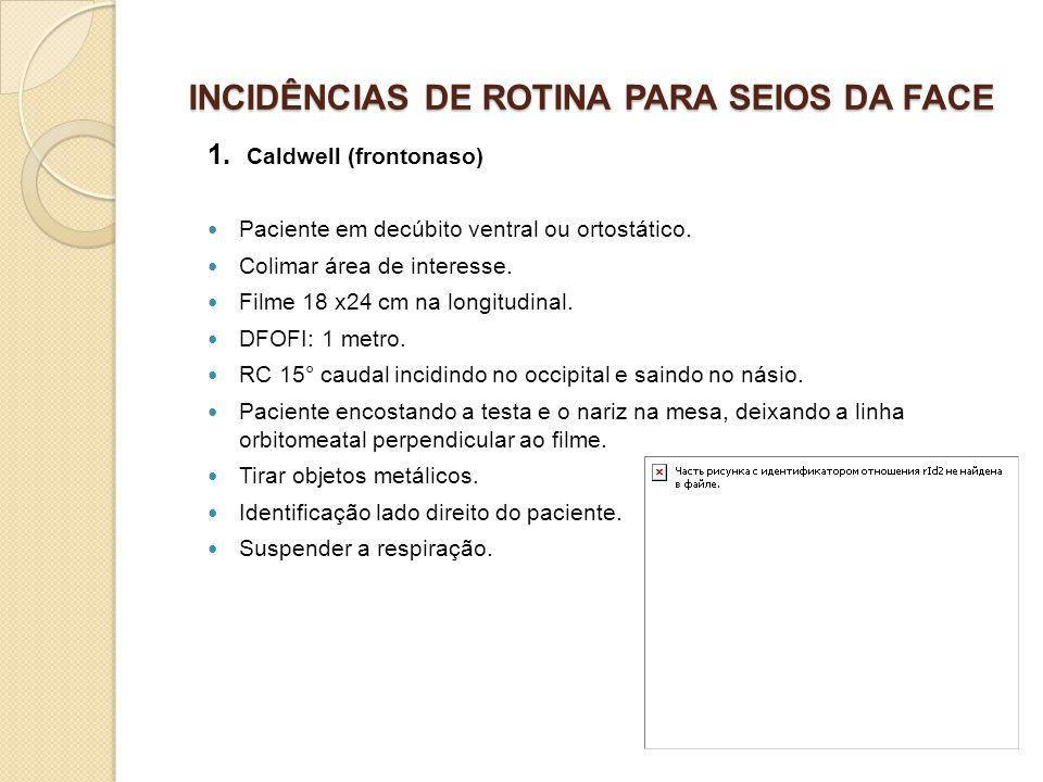 INCIDÊNCIAS DE ROTINA PARA SEIOS DA FACE 1. Caldwell (frontonaso) Paciente em decúbito ventral ou ortostático. Colimar área de interesse. Filme 18 x24