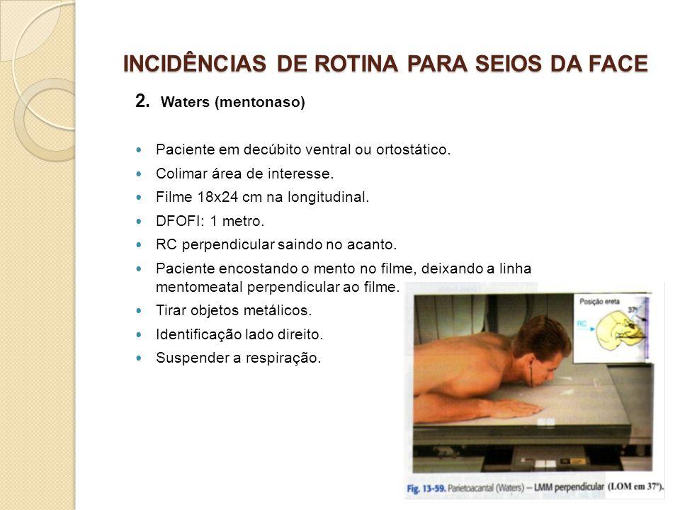 INCIDÊNCIAS DE ROTINA PARA SEIOS DA FACE 2. Waters (mentonaso) Paciente em decúbito ventral ou ortostático. Colimar área de interesse. Filme 18x24 cm