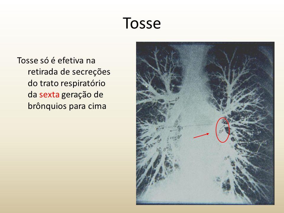 Tosse Tosse só é efetiva na retirada de secreções do trato respiratório da sexta geração de brônquios para cima