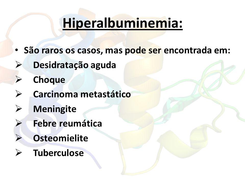 Hiperalbuminemia: São raros os casos, mas pode ser encontrada em:  Desidratação aguda  Choque  Carcinoma metastático  Meningite  Febre reumática