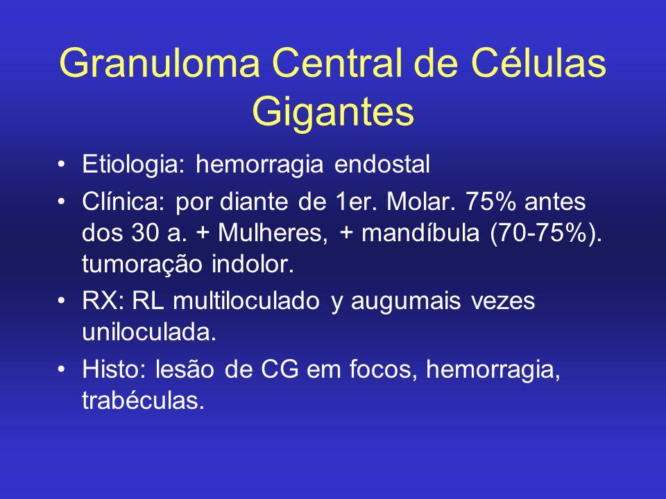 Granuloma Central de Células Gigantes Etiologia: hemorragia endostal Clínica: por diante de 1er. Molar. 75% antes dos 30 a. + Mulheres, + mandíbula (7