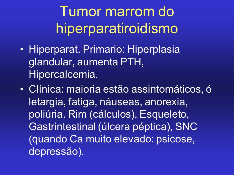 Tumor marrom do hiperparatiroidismo Hiperparat. Primario: Hiperplasia glandular, aumenta PTH, Hipercalcemia. Clínica: maioria estão assintomáticos, ó