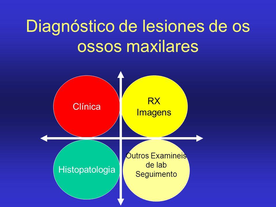 Diagnóstico de lesiones de os ossos maxilares Histopatologia RX Imagens Clínica Outros Examineis de lab Seguimento