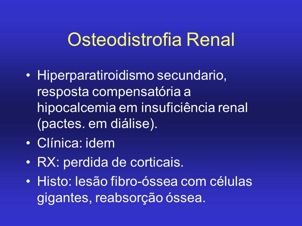 Osteodistrofia Renal Hiperparatiroidismo secundario, resposta compensatória a hipocalcemia em insuficiência renal (pactes. em diálise). Clínica: idem