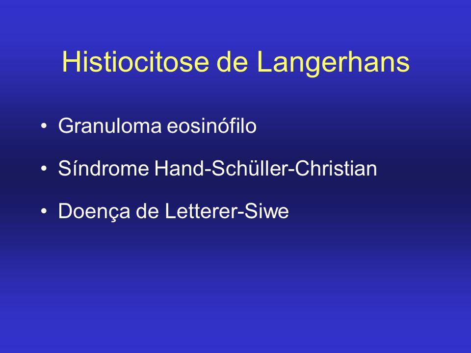 Histiocitose de Langerhans Granuloma eosinófilo Síndrome Hand-Schüller-Christian Doença de Letterer-Siwe