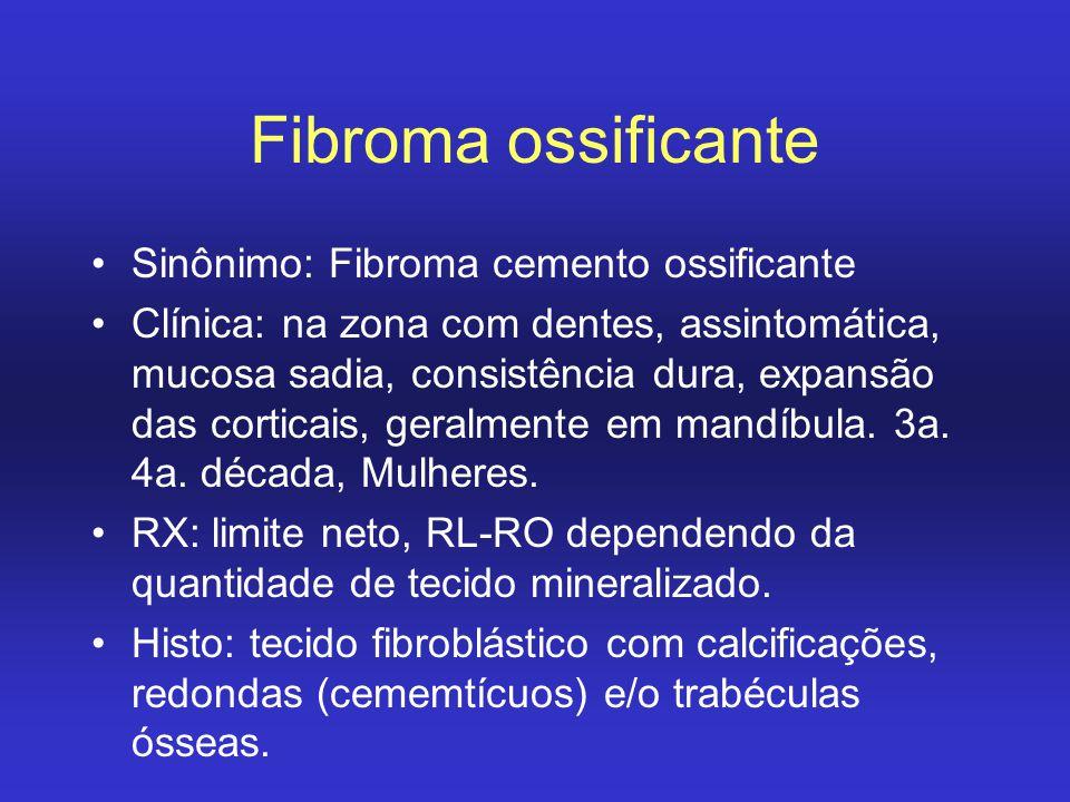 Fibroma ossificante Sinônimo: Fibroma cemento ossificante Clínica: na zona com dentes, assintomática, mucosa sadia, consistência dura, expansão das co