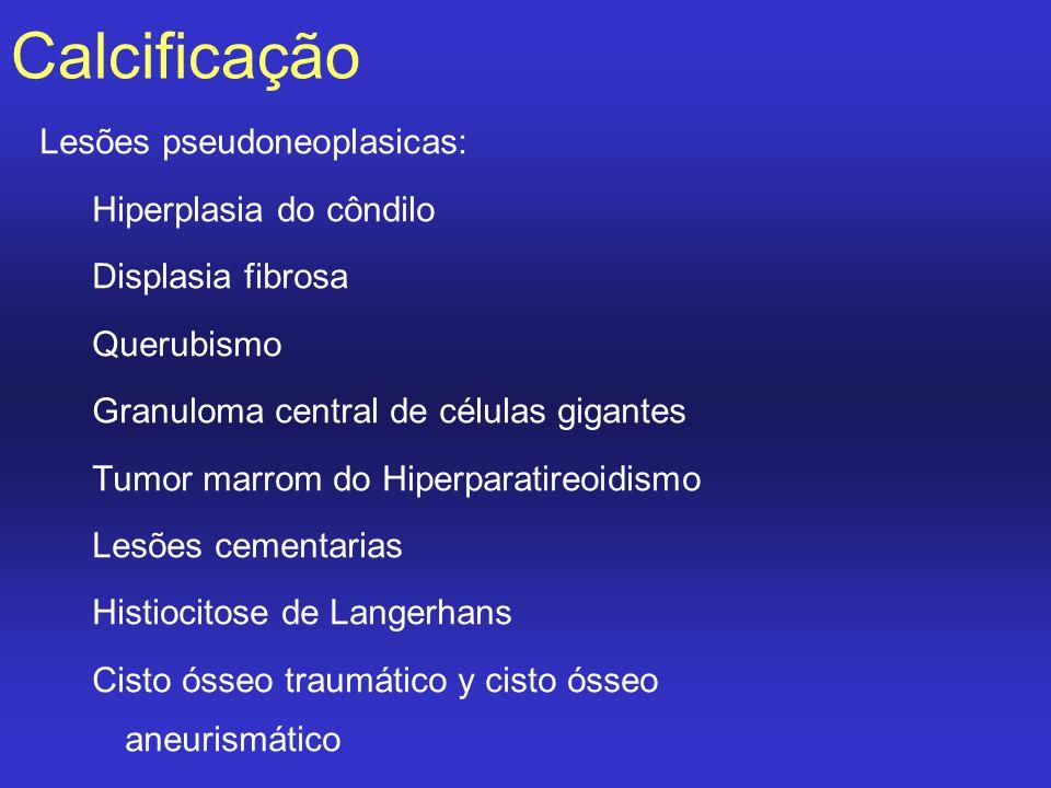 Calcificação Lesões pseudoneoplasicas: Hiperplasia do côndilo Displasia fibrosa Querubismo Granuloma central de células gigantes Tumor marrom do Hiper