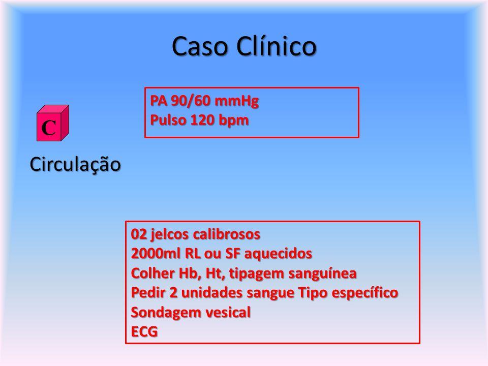 Caso Clínico Circulação PA 90/60 mmHg Pulso 120 bpm C 02 jelcos calibrosos 2000ml RL ou SF aquecidos Colher Hb, Ht, tipagem sanguínea Pedir 2 unidades