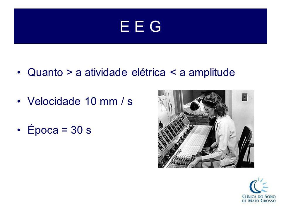 E E G Quanto > a atividade elétrica < a amplitude Velocidade 10 mm / s Época = 30 s