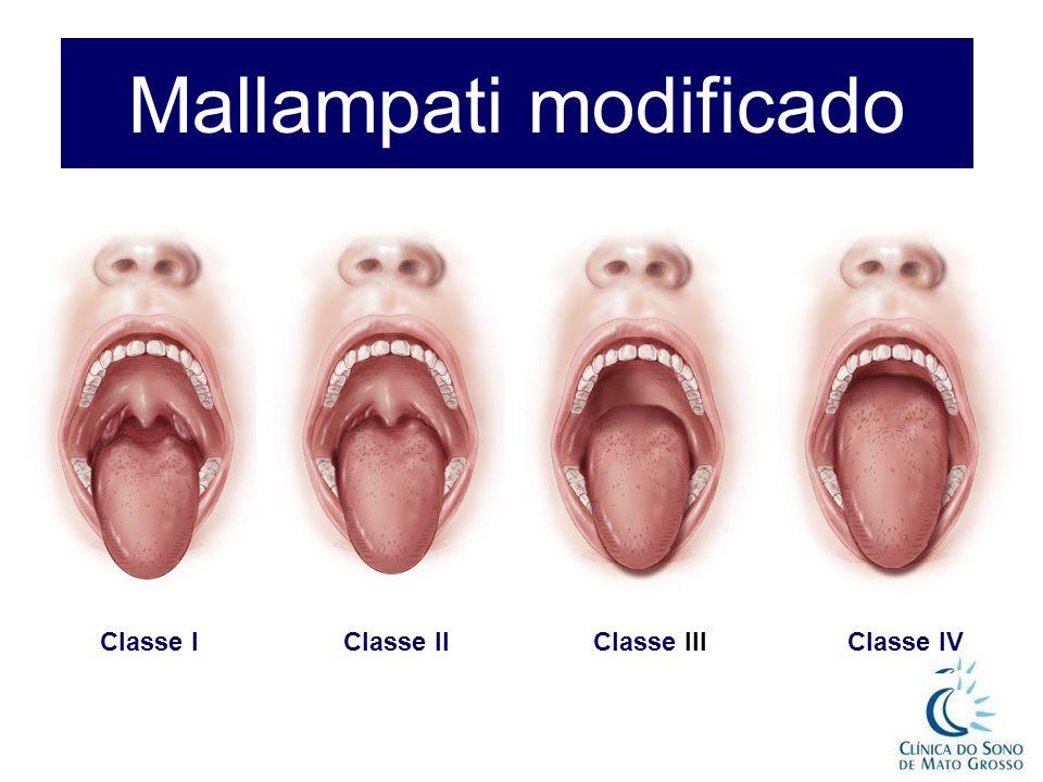Mallampati modificado Classe IClasse II Classe III Classe IV