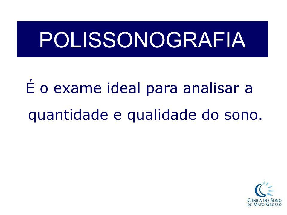 POLISSONOGRAFIA É o exame ideal para analisar a quantidade e qualidade do sono.