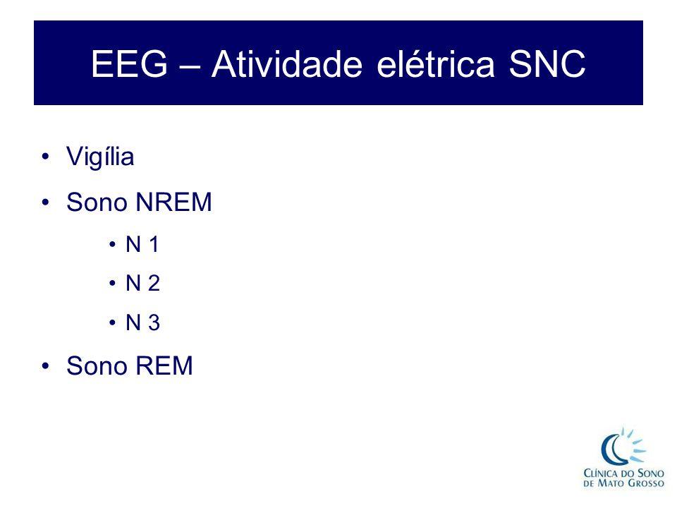 EEG – Atividade elétrica SNC Vigília Sono NREM N 1 N 2 N 3 Sono REM