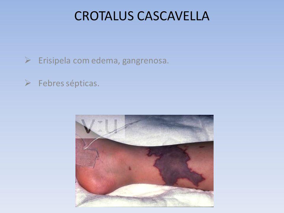 CROTALUS CASCAVELLA SENSAÇÕES: De corpo estranho na garganta. Dor constritiva da tireóide como se tivesse um fio amarrado ao redor do pescoço. De plen