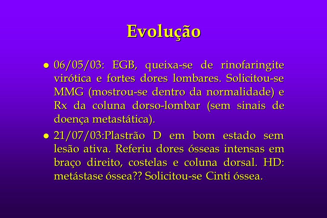 Evolução l 06/05/03: EGB, queixa-se de rinofaringite virótica e fortes dores lombares. Solicitou-se MMG (mostrou-se dentro da normalidade) e Rx da col