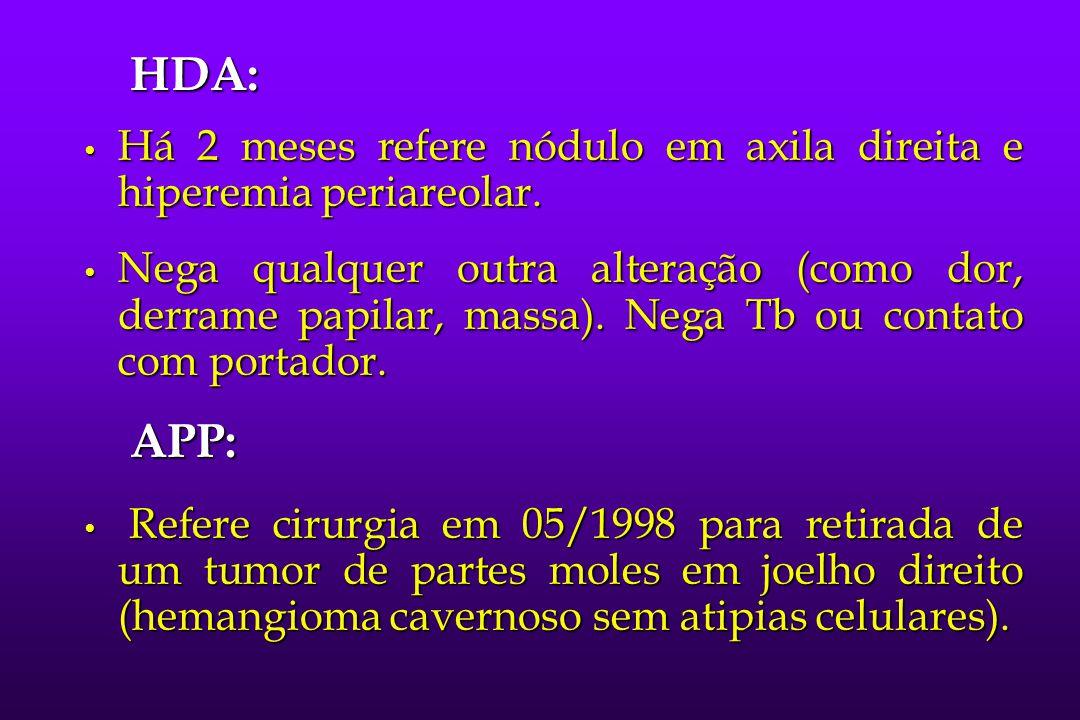 Carcinoma Oculto de Mama Halsted (1907) Halsted (1907) Desafio diagnóstico e terapêutico: indetectável pela palpação e radiologia.