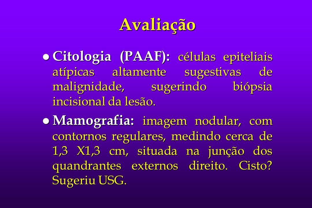 Avaliação l Citologia (PAAF): células epiteliais atípicas altamente sugestivas de malignidade, sugerindo biópsia incisional da lesão. l Mamografia: im