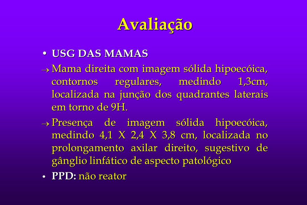 Avaliação USG DAS MAMAS USG DAS MAMAS  Mama direita com imagem sólida hipoecóica, contornos regulares, medindo 1,3cm, localizada na junção dos quadra
