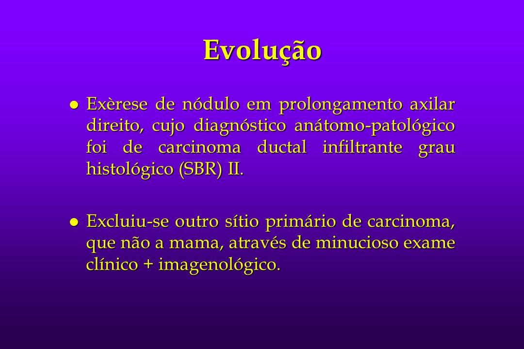 Evolução l Exèrese de nódulo em prolongamento axilar direito, cujo diagnóstico anátomo-patológico foi de carcinoma ductal infiltrante grau histológico