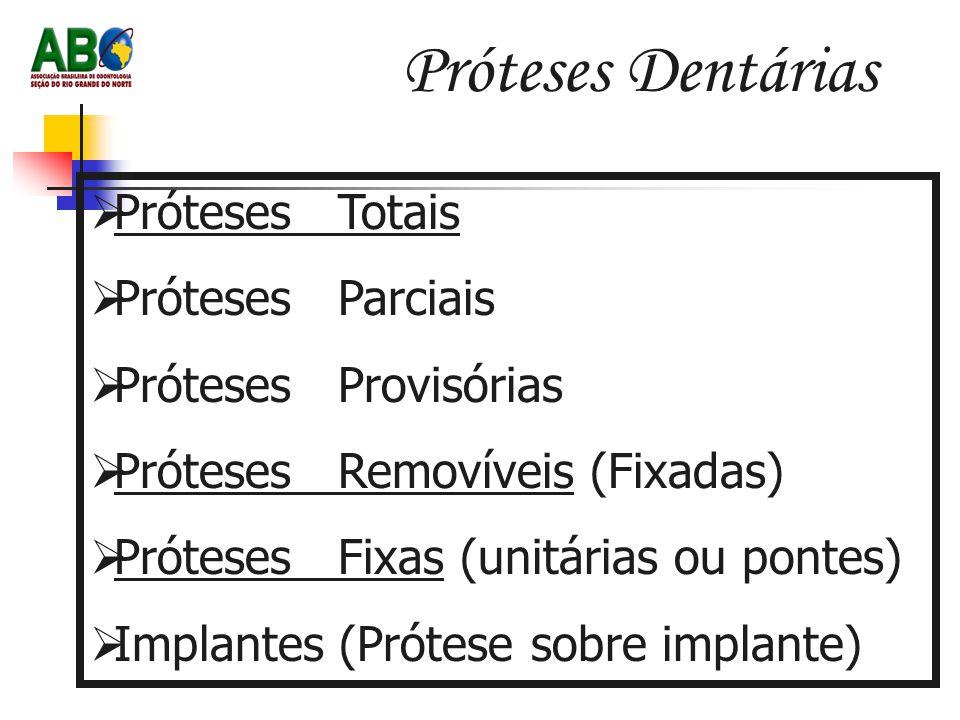 Próteses Dentárias  Próteses Totais  Próteses Parciais  Próteses Provisórias  Próteses Removíveis (Fixadas)  Próteses Fixas (unitárias ou pontes)  Implantes (Prótese sobre implante)