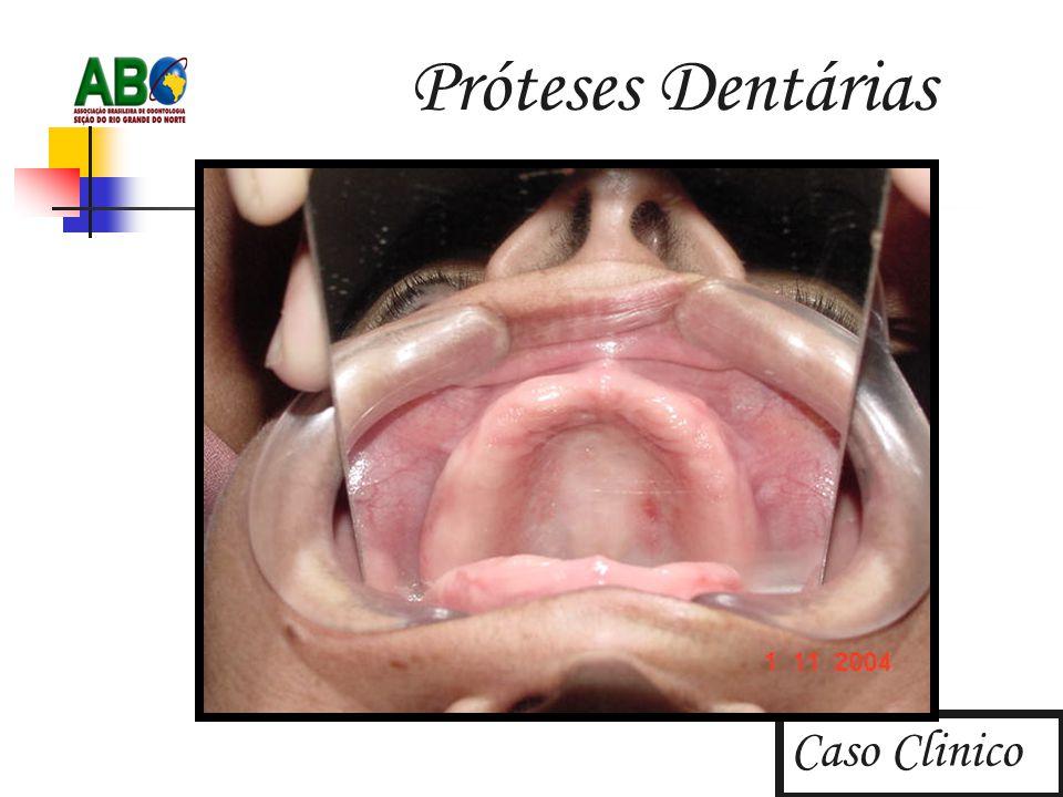 Próteses Dentárias Caso Clinico