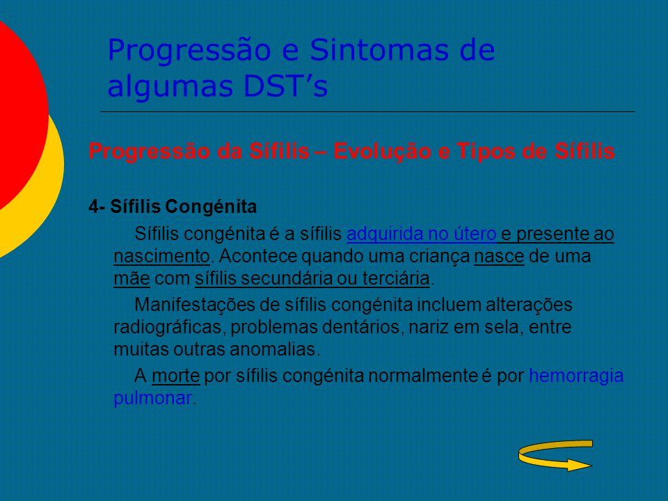 Progressão e Sintomas de algumas DST's Progressão da Sífilis – Evolução e Tipos de Sífilis 4- Sífilis Congénita Sífilis congénita é a sífilis adquirid