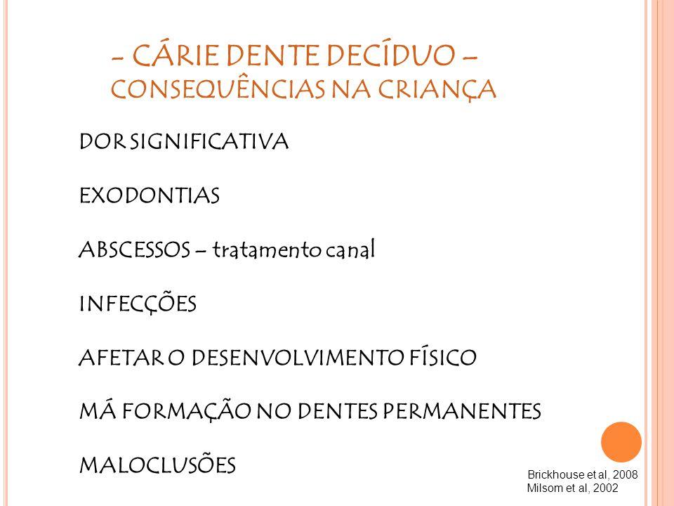 - CÁRIE DENTE DECÍDUO – CONSEQUÊNCIAS NA CRIANÇA DOR SIGNIFICATIVA EXODONTIAS ABSCESSOS – tratamento canal INFECÇÕES AFETAR O DESENVOLVIMENTO FÍSICO M