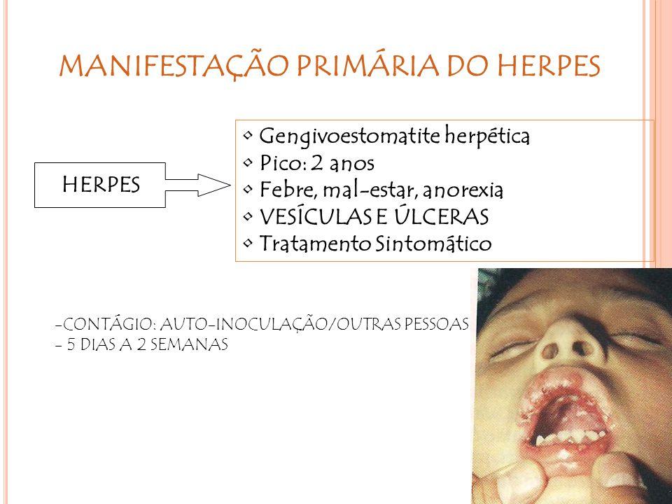 HERPES Gengivoestomatite herpética Pico: 2 anos Febre, mal-estar, anorexia VESÍCULAS E ÚLCERAS Tratamento Sintomático MANIFESTAÇÃO PRIMÁRIA DO HERPES