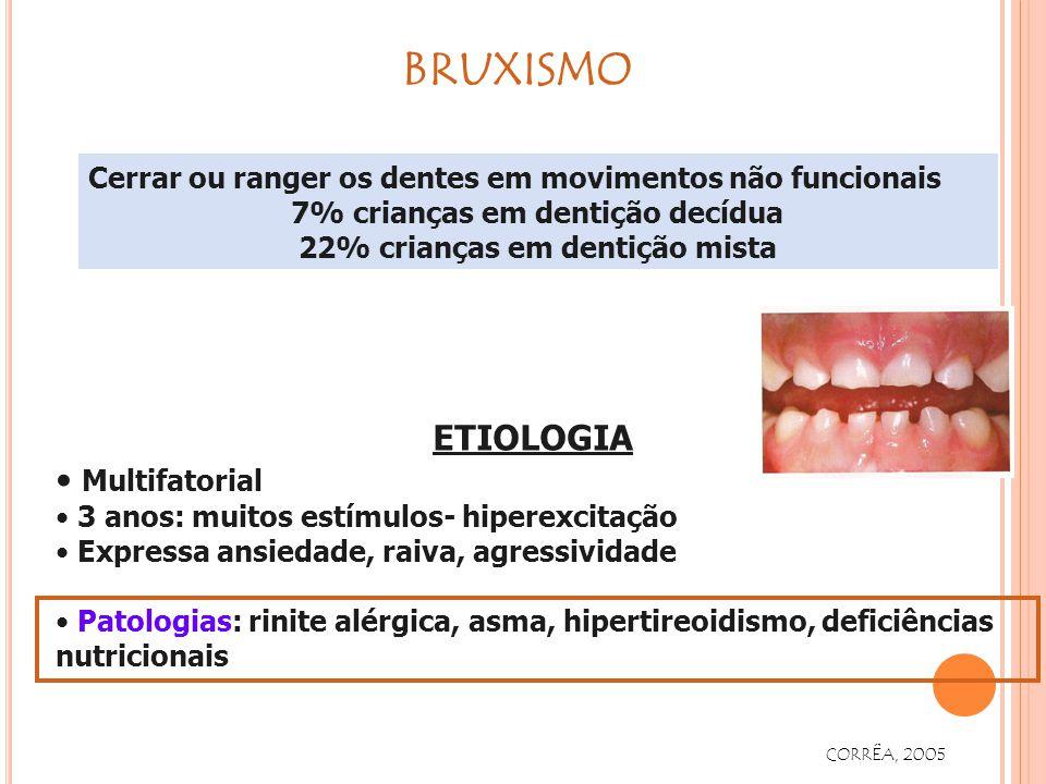 Cerrar ou ranger os dentes em movimentos não funcionais 7% crianças em dentição decídua 22% crianças em dentição mista ETIOLOGIA Multifatorial 3 anos: