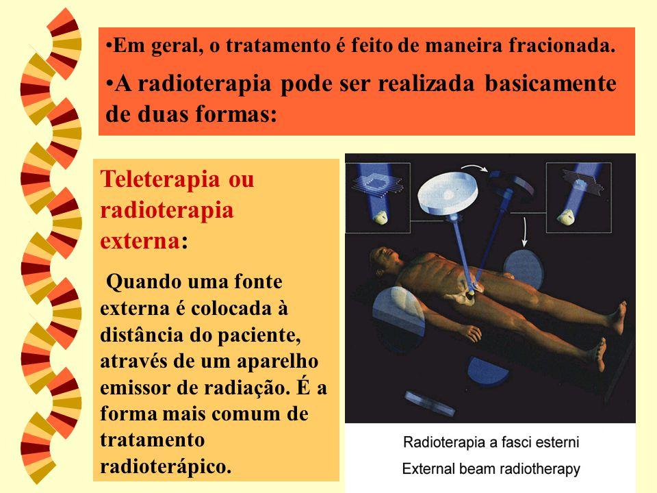 Em geral, o tratamento é feito de maneira fracionada. A radioterapia pode ser realizada basicamente de duas formas: Teleterapia ou radioterapia extern