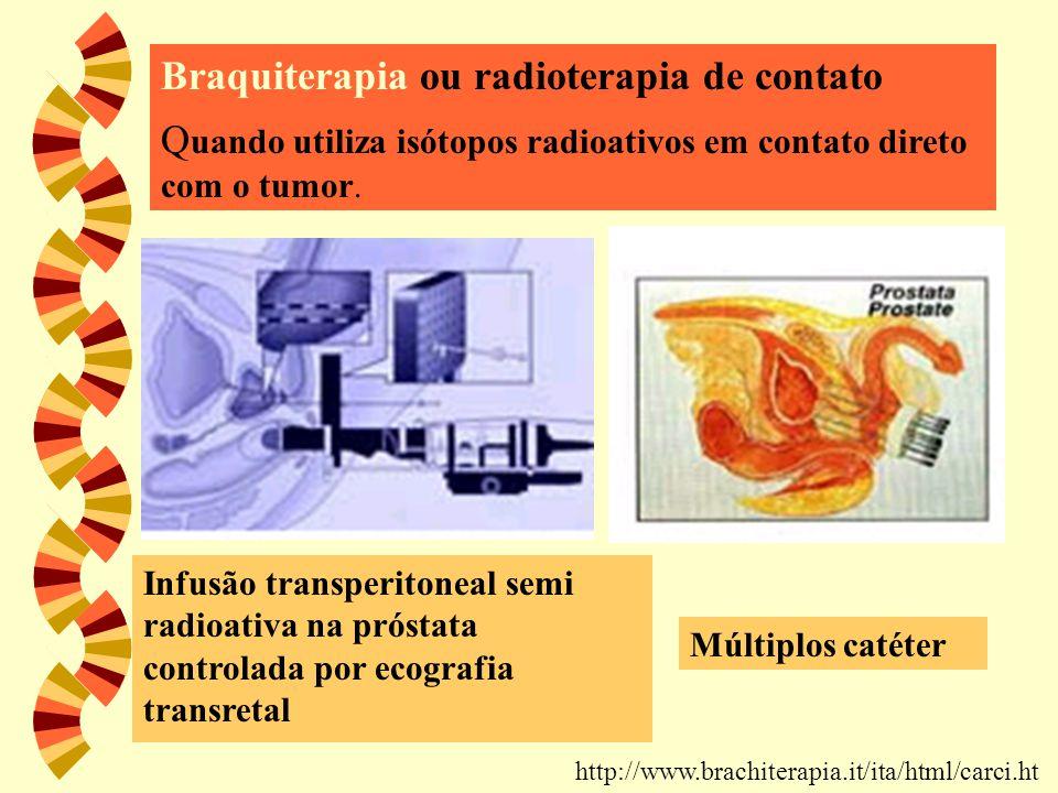 Braquiterapia ou radioterapia de contato Q uando utiliza isótopos radioativos em contato direto com o tumor. http://www.brachiterapia.it/ita/html/carc