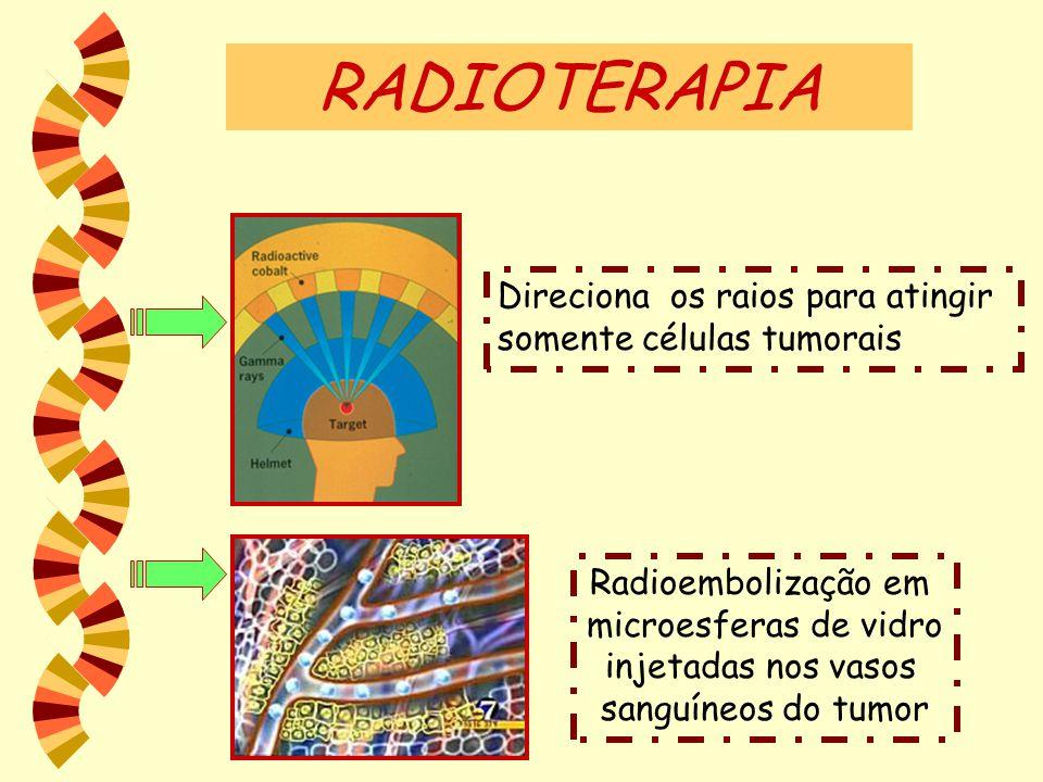 RADIOTERAPIA Direciona os raios para atingir somente células tumorais Radioembolização em microesferas de vidro injetadas nos vasos sanguíneos do tumo