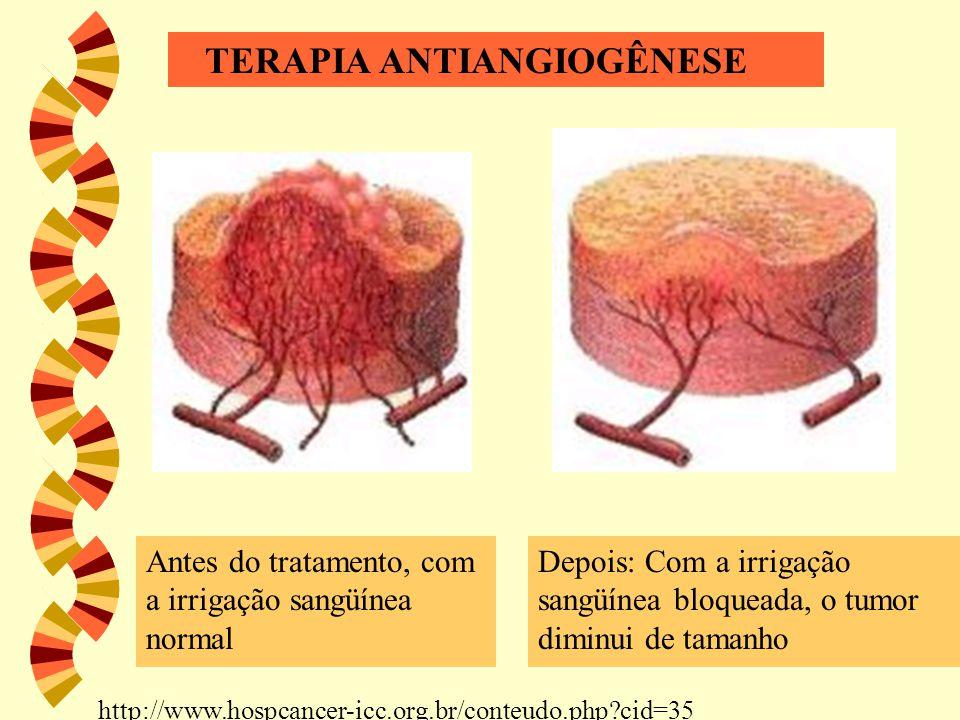 Antes do tratamento, com a irrigação sangüínea normal Depois: Com a irrigação sangüínea bloqueada, o tumor diminui de tamanho TERAPIA ANTIANGIOGÊNESE